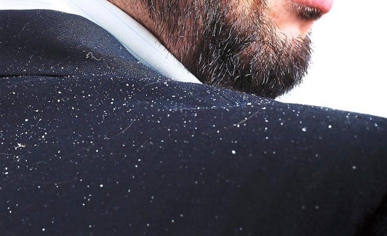 Choose the right Shampoos for Your Dandruff Issue?