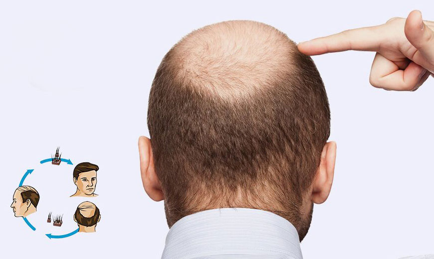 Why Hair Transplant Is The Essential One For The Bald People?